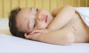 Viral skin rash diseases in children